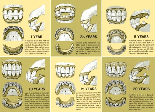 dientes2